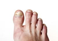How Changes in Your Feet Can Indicate Problems Elsewhere