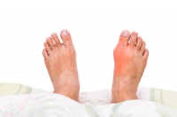 Gout Causes Severe Pain And Discomfort