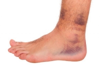 Ankle Sprains May Cause Ankle Pain