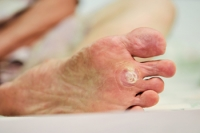 What Does A Plantar Wart Look Like?