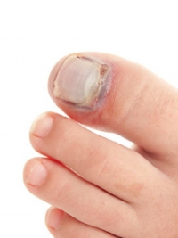 Does My Child Have a Broken Toe?