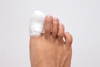Treatment Options for Broken Toes