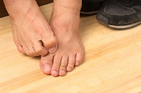 Risk Factors for Athlete's Foot